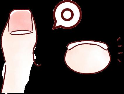 巻き爪補正後のイラスト