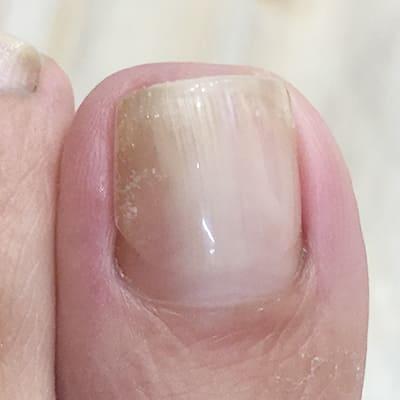 Aqua Rosa 福島県郡山市ネイルサロンアクアロサ 巻き爪補正後の画像